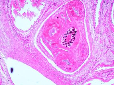 A hydatid cyst