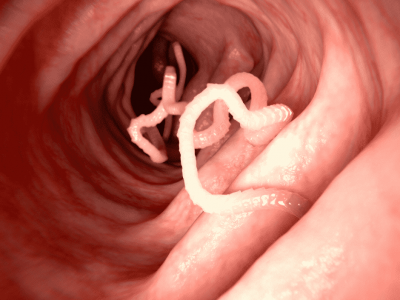 A Taenia tapeworm in intestine